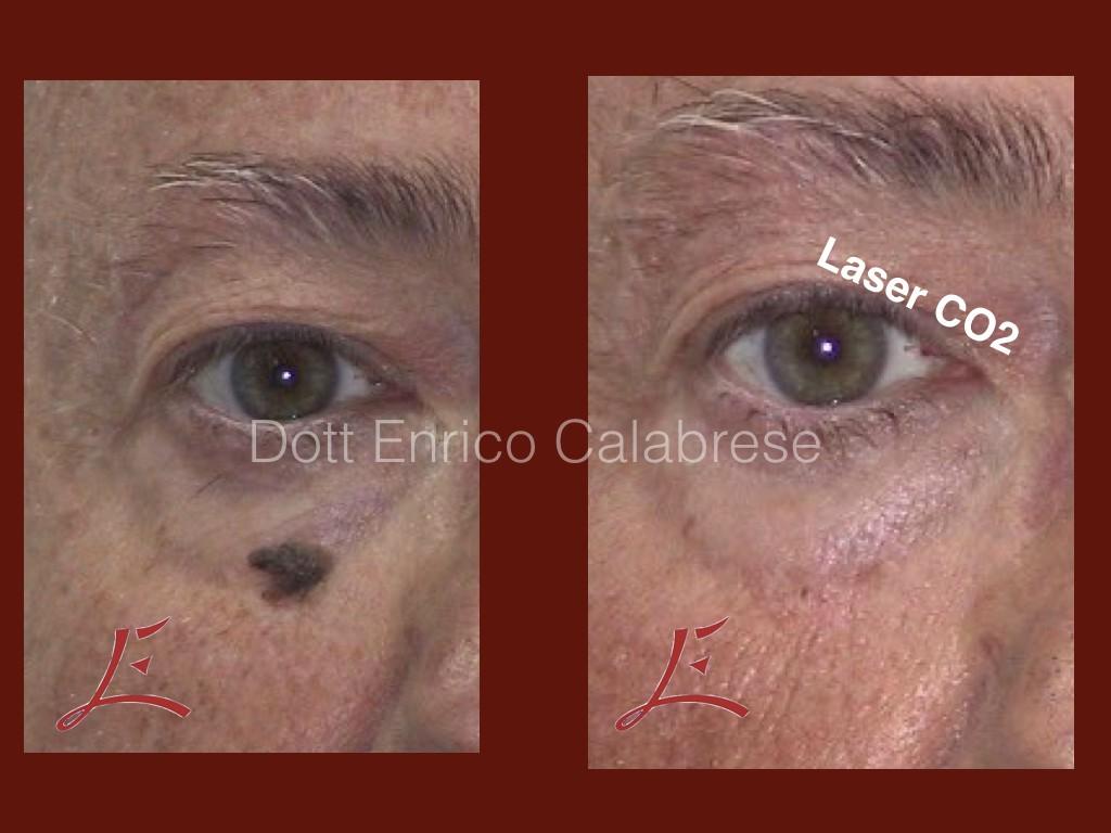 Foto Trattamento Neoformazioni Cutanee Laser