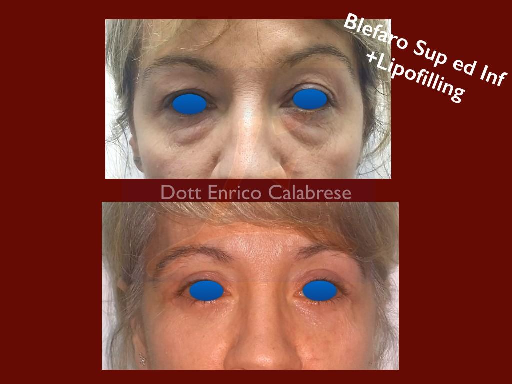 Blefaroplastica superiore ed inferiore con lipofilling