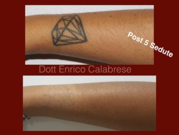 Rimozione Tatuaggio Milano