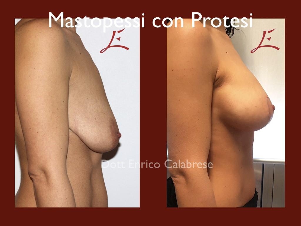 Foto Mastopessi con Protesi