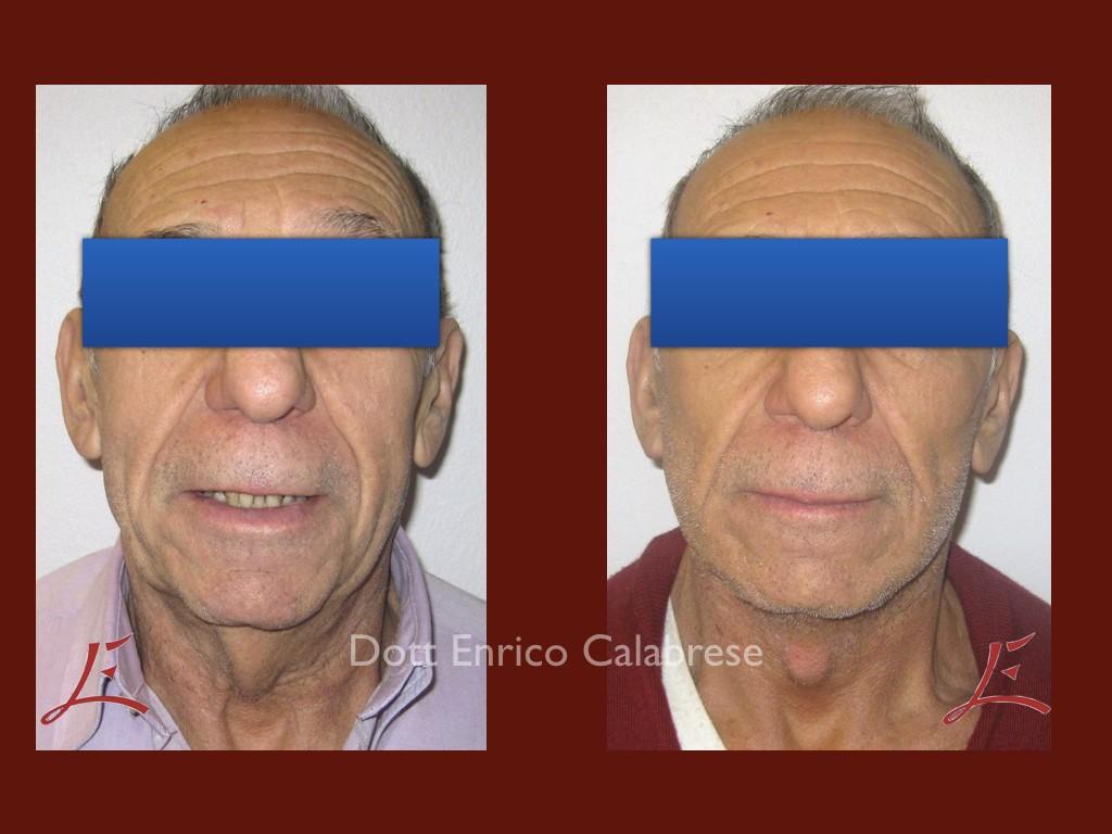 Foto Lifting Collo prima e dopo
