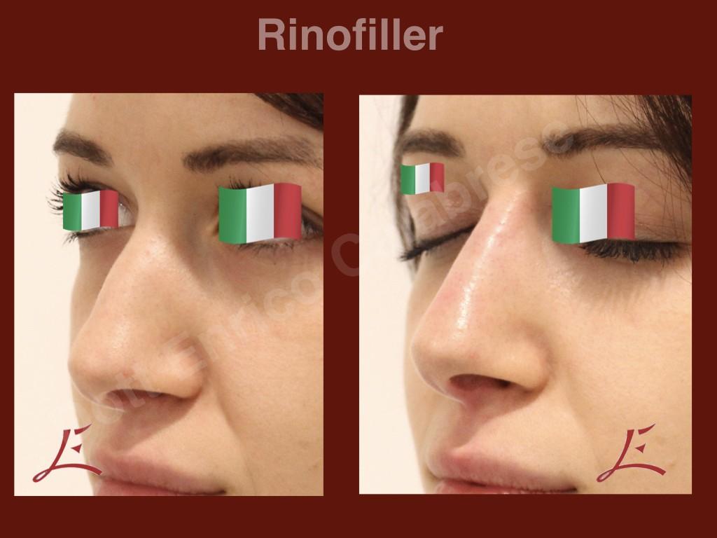 Rinofiller